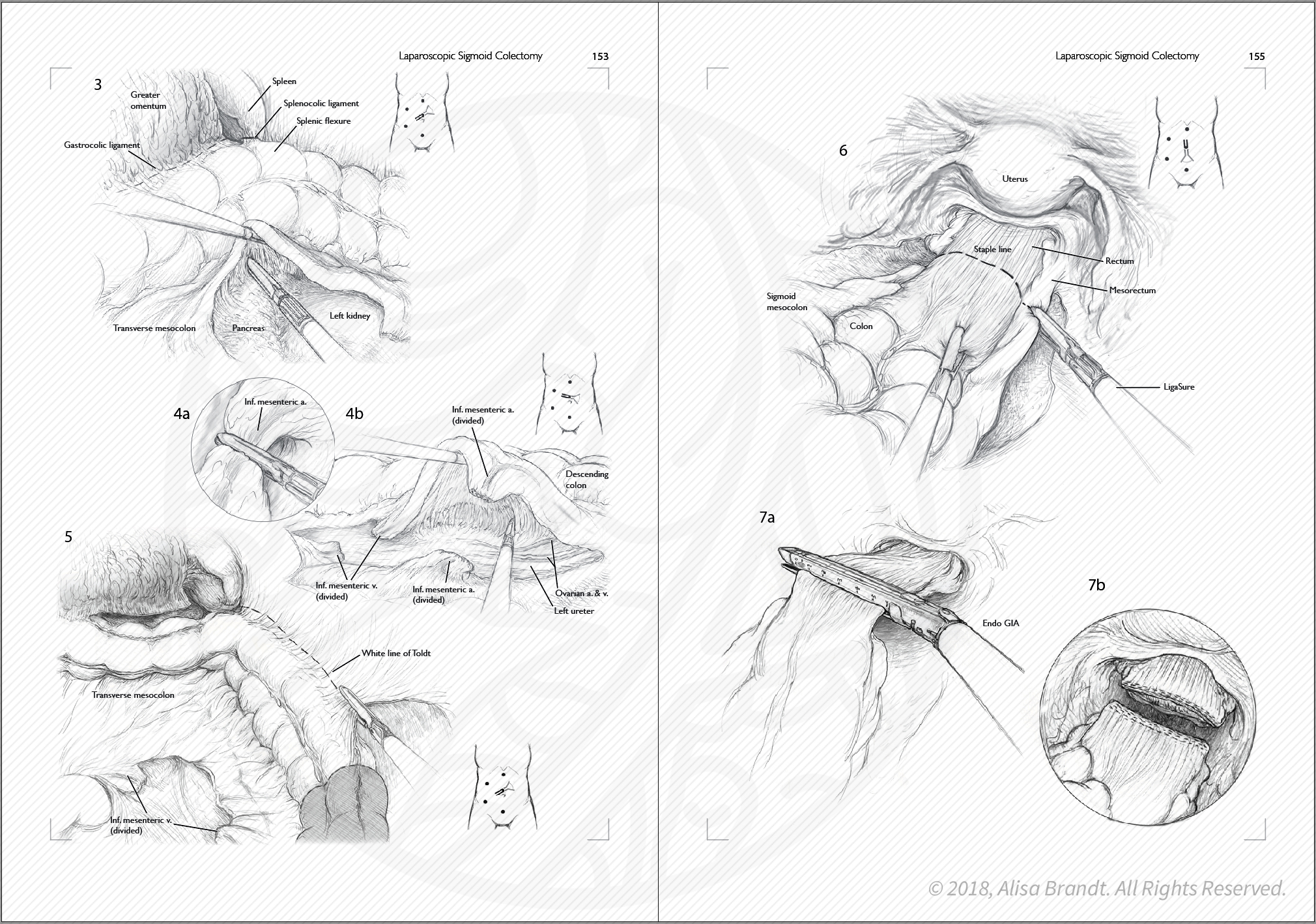 Surgical sketches in a sample surgical atlas layout