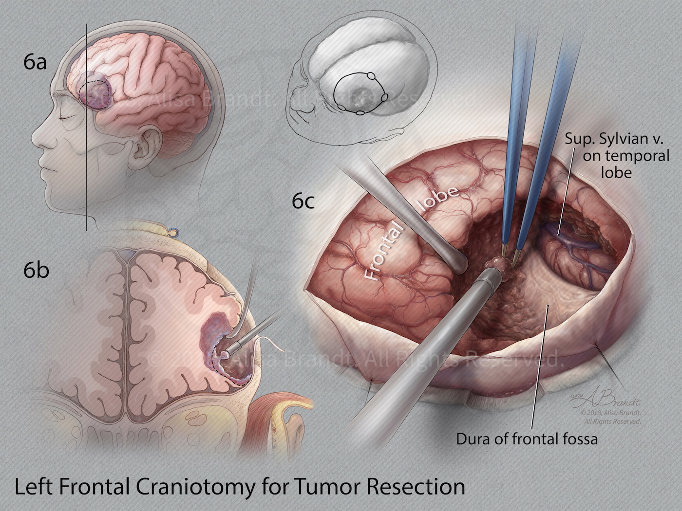 Left frontal craniotomy surgical illustration