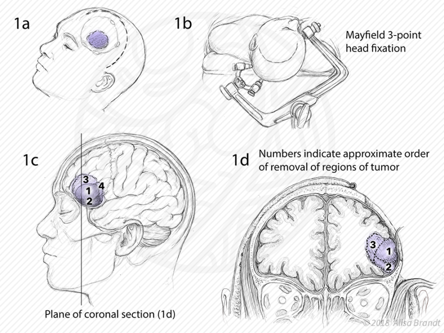 Refined surgical sketches (left frontal craniotomy)